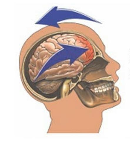 blagi potres mozga simptomi
