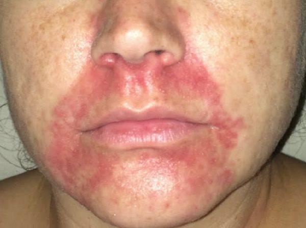 perioralni dermatitis simptomi