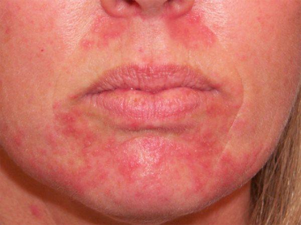 perioralni dermatitis slike