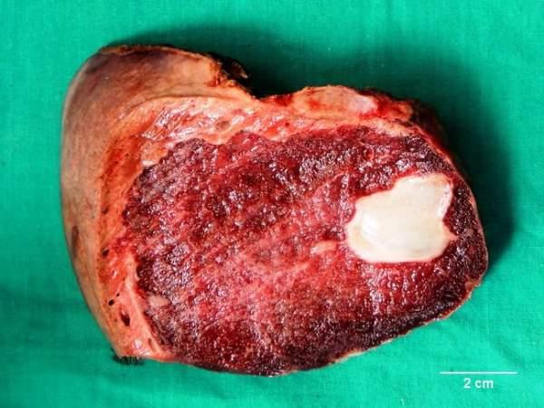 Kaverozni hemangiom