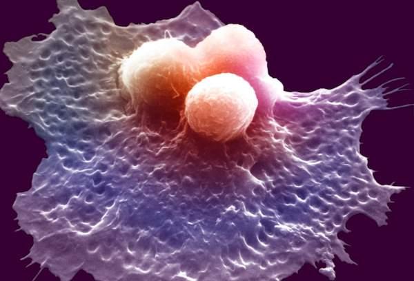 Makrofage