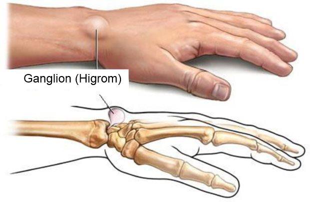ganglion higrom