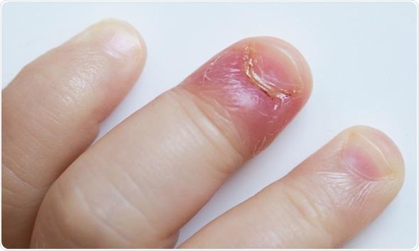 infekcija zanoktica