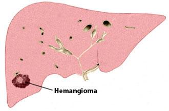 izraslina na jetri