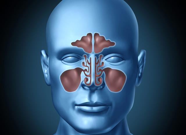 kako izleciti upalu sinusa