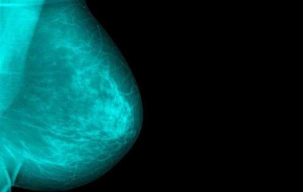 kako prepoznati rak dojke