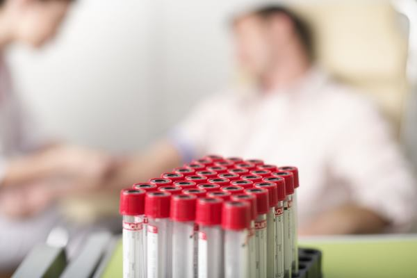 krvna slika RDW