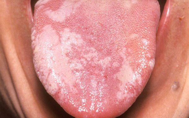 leukoplakija na jeziku