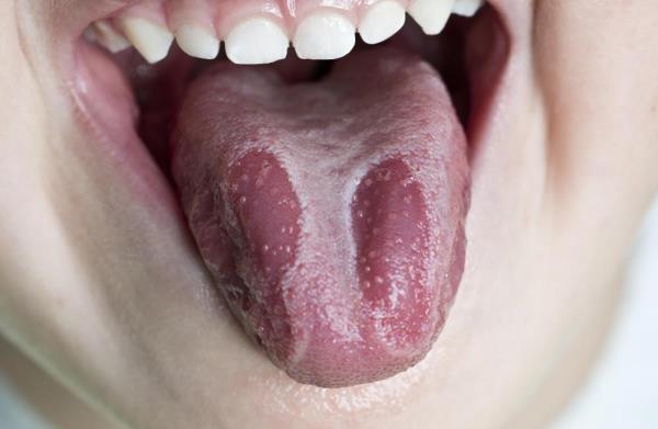leukoplakija na jeziku slike