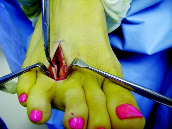 operacija mortonovog neuroma