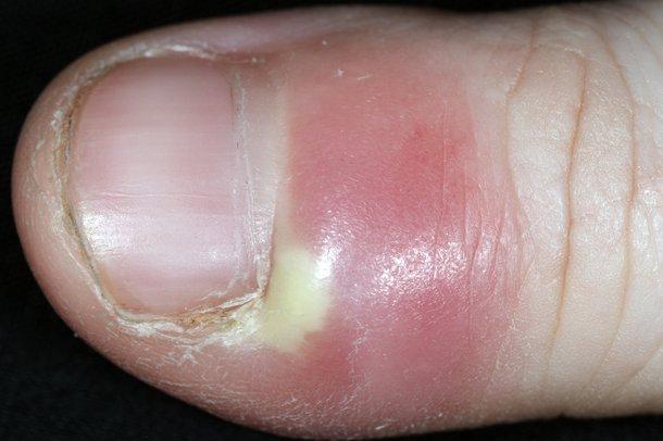 paronihija prsta