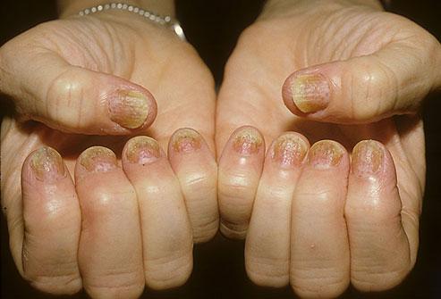 psorijaza na noktima ruku