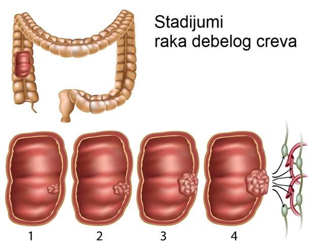 rak debelog creva stadijumi