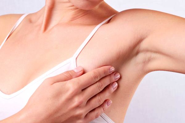 simptomi karcinoma dojke