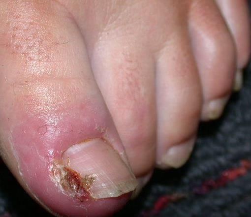 upala zanoktice na nožnom palcu