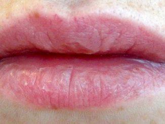 utrnulost usana