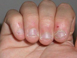 zanoktice na prstima