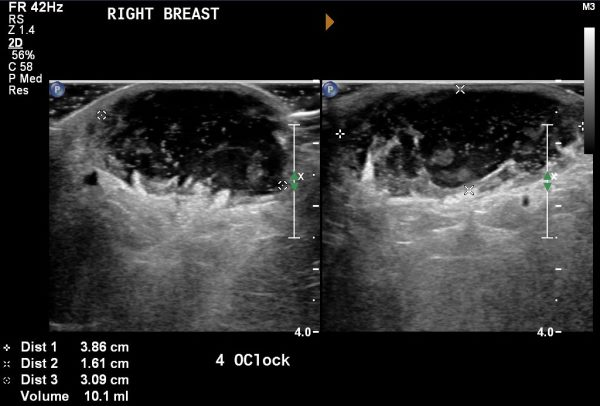 abces dojke