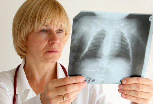 astma kod odraslih