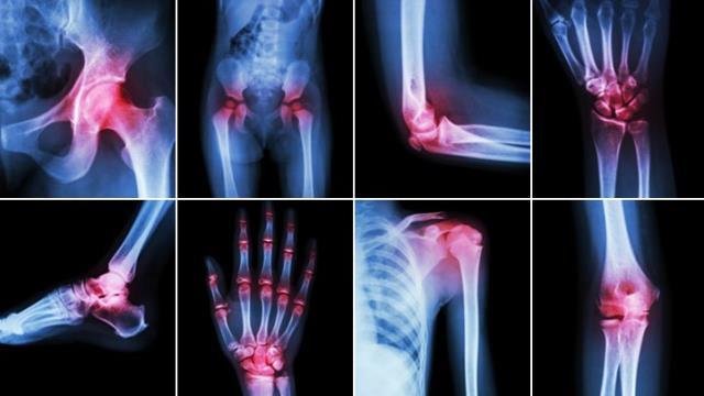 bol u zglobovima