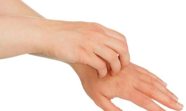 gljivice na ruci