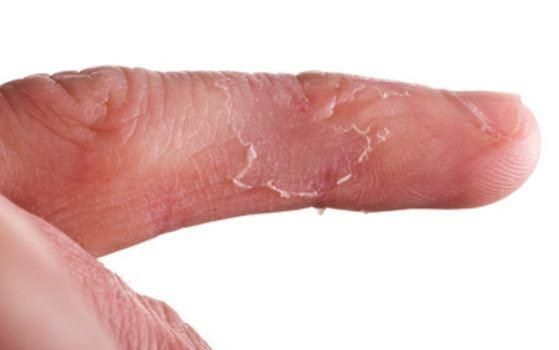 kako izleciti ekcem na rukama