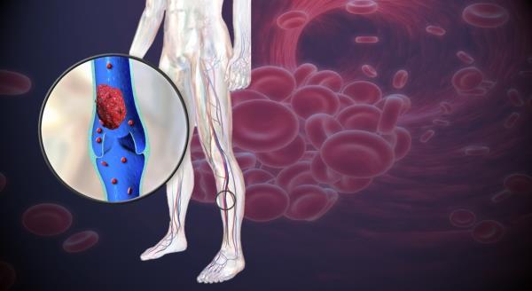 krvni ugrusak