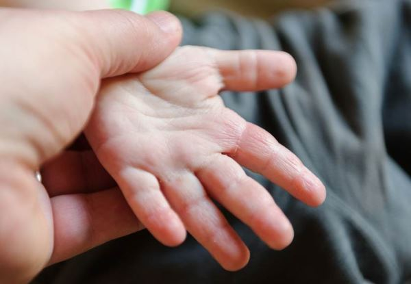 lek za ekcem kod dece