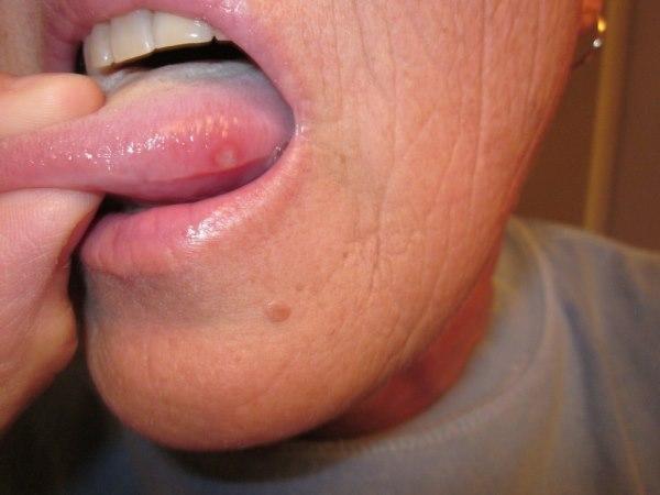 rak jezika prvi simptomi