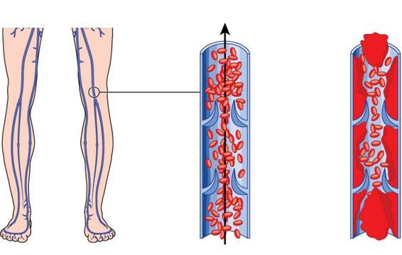 tromb u nozi simptomi