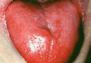 upala jezika