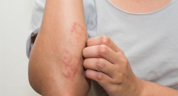 alergija na kozi