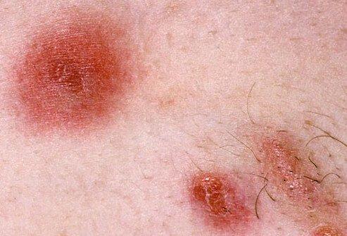 bakterija mrsa simptomi