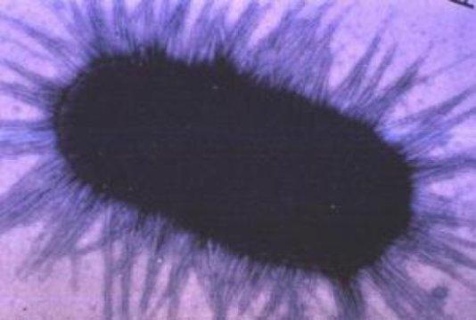 bakterija proteus mirabilis