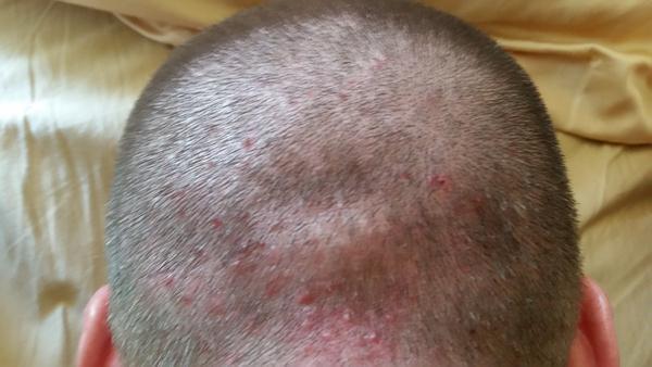 folikulitis na glavi slike