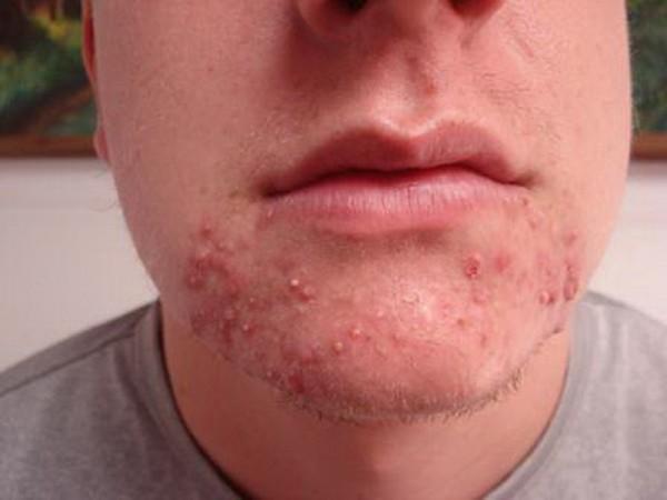 folikulitis na licu