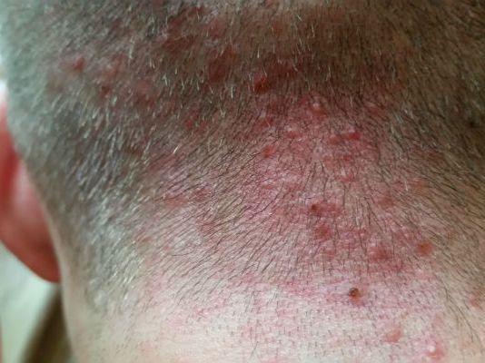 folikulitis na vratu