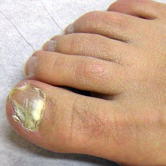 gljivice na noktima