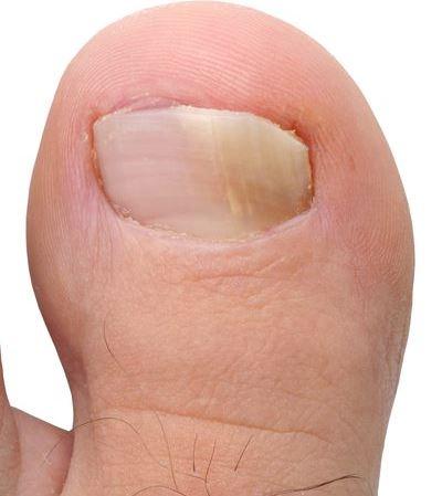 gljivice na palcu noge