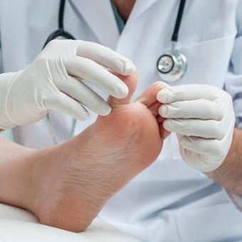 gljivice na stopalima lek