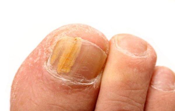 gljivicna infekcija noktiju
