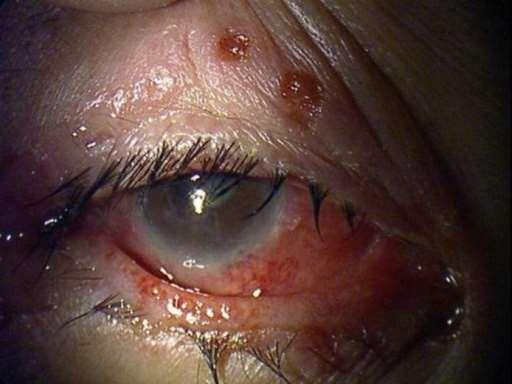 herpes na ocima