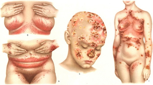 kandida na kozi simptomi