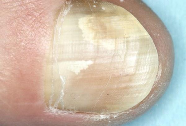 kandida na noktima