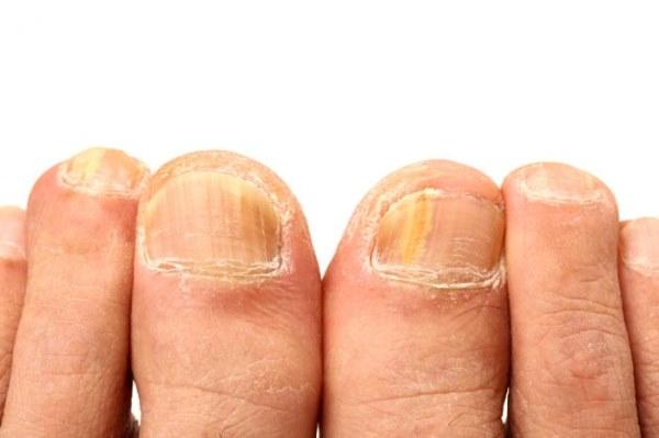 kandida noktiju