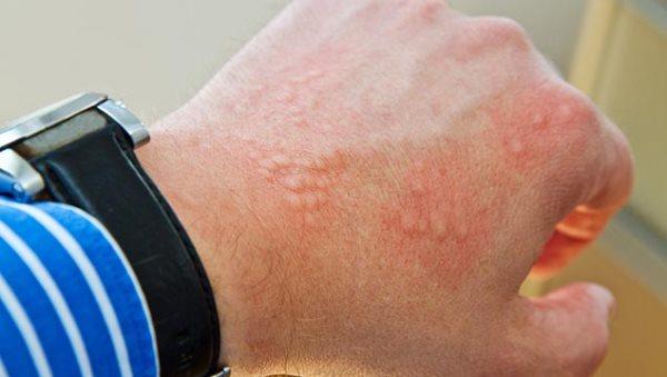 kontaktni dermatitis na rukama