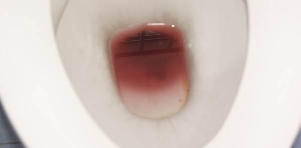 krv u mokraci kod muskaraca
