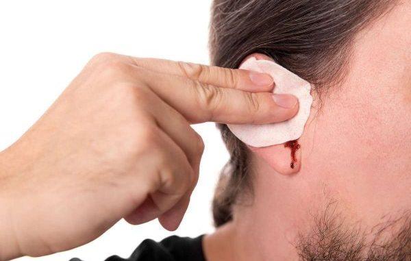 krvarenje iz uha