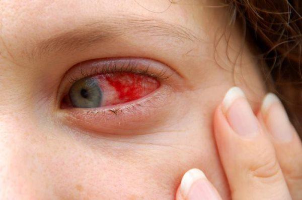 krvavo oko