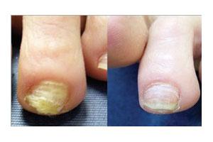 lek protiv gljivica na noktima